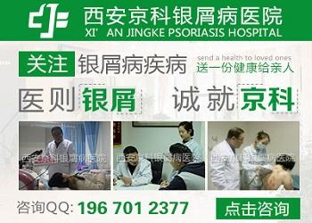 郑州最好的牛皮癣医院