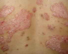 红皮型银屑病的病因