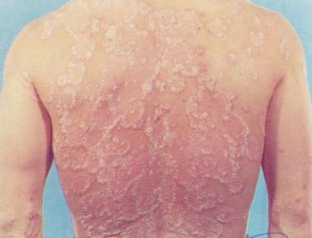 牛皮癣患者如何预防皮肤过敏