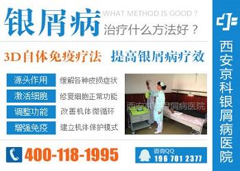 郑州银屑病专科医院