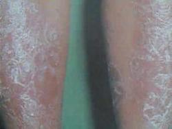 牛皮癣要注意脚部护理