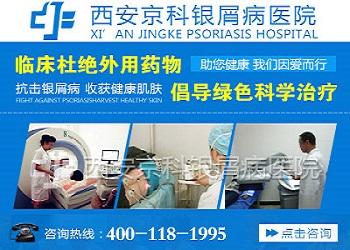 郑州哪个医院看牛皮癣最好