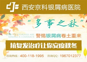 牛皮癣医院郑州排名前十