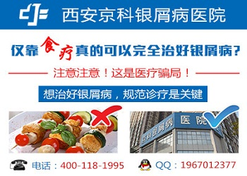 郑州牛皮癣专业医院