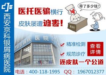 银屑病图片郑州市银屑病研究所专业