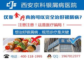 银屑病的症状郑州市银屑病研究所正规