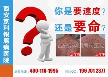 银屑病图片郑州市银屑病研究所正规