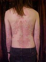 背部牛皮癣怎么治疗最好