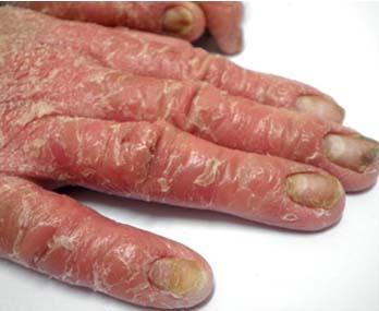 手部牛皮癣如何护理