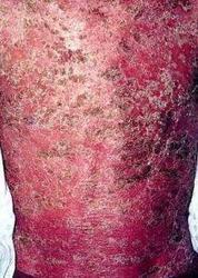 红皮型牛皮癣有哪些危害