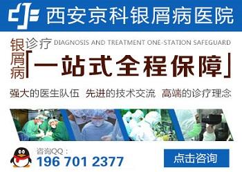 郑州专治银屑病医院哪里比较好